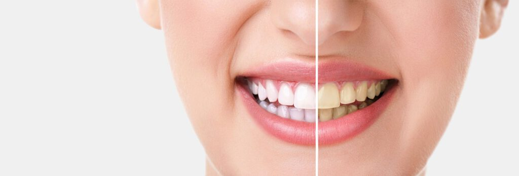 diş temizleme, diş hekimi tanju demirtaş, ,mardin diş doktoru tanju demirtaş