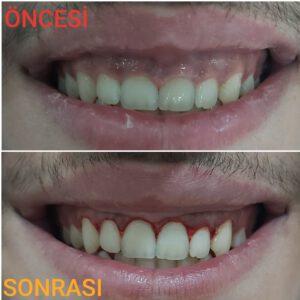 gingivoplasti, diş hekimi tanju demirtaş