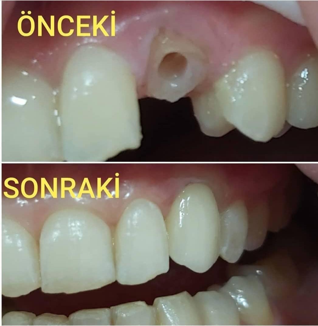 Kırılmış köpek dişinin zirkonyum ile kaplaması