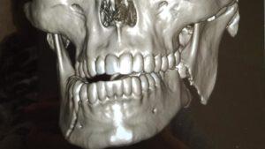 çene kırığı, diş hekimi tanju demirtaş